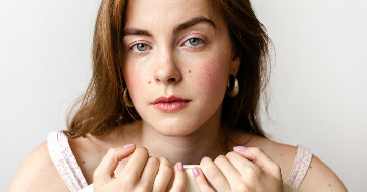 A Tip For Covering Zits From A Beauty Editor Who Had Acne For 15 Years