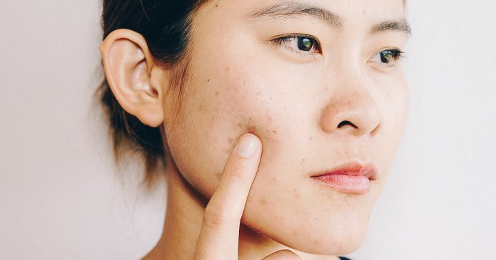 9 Acne Spot Treatments You Can Find In The Kitchen For Clear Skin