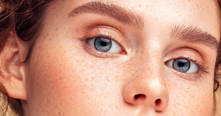 Eyebrow Dandruff: Yes It's A Thing & Here Are Some Natural Remedies