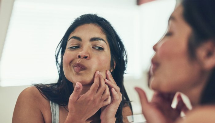 The Unexpected Hack That Can Make A Pimple Less Red In 60 Seconds – Jamie Schneider, mindbodygreen