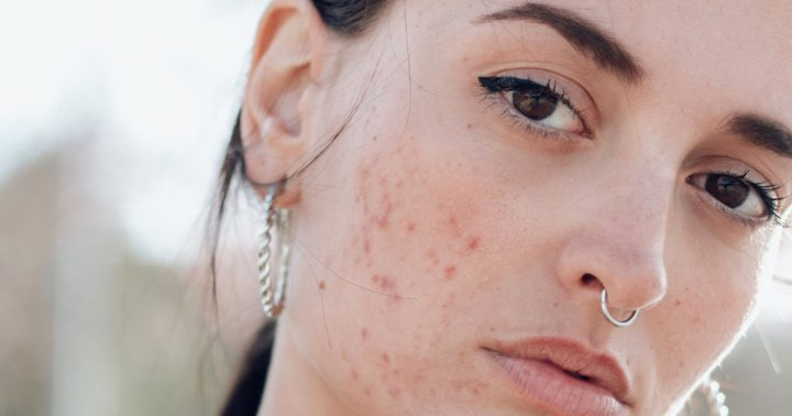 Is It Acne Or Rosacea? How To Spot The Difference, According To Derms