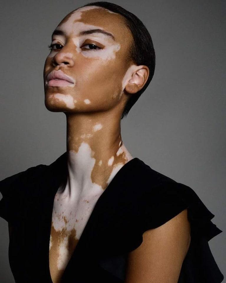 Vitiligo: Causes, Treatment & 'Cures' For The Rare Skin Condition