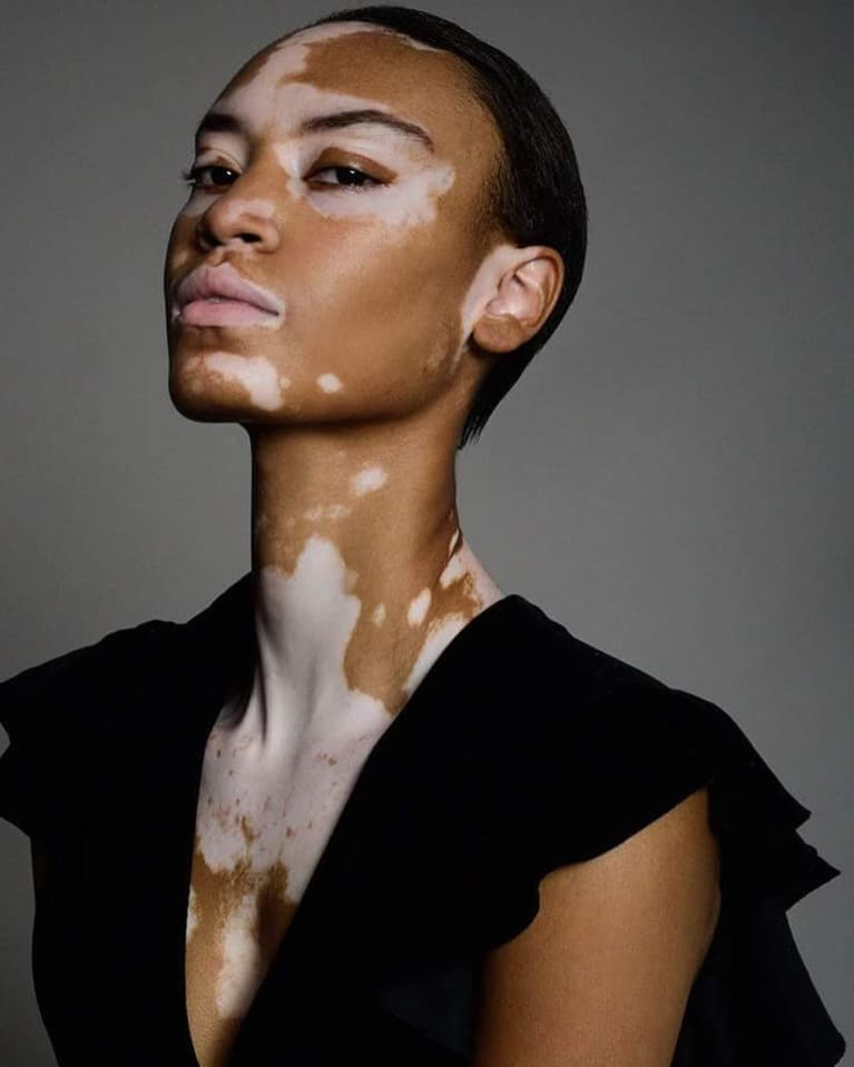 Vitiligo: Causes, Treatment & 'Cures' For The Rare Skin Condition