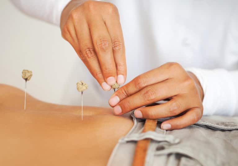 I Tried Acupuncture For My Ulcerative Colitis: Here's What