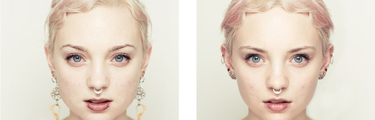 Photo Series Shows That More Symmetrical Doesn't Mean More Beautiful Hero Image