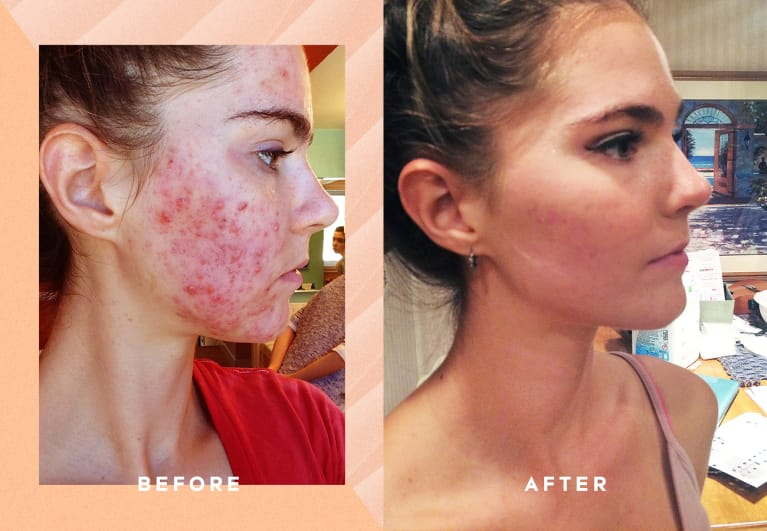 What I Ate To Get Rid Of My Cystic Acne