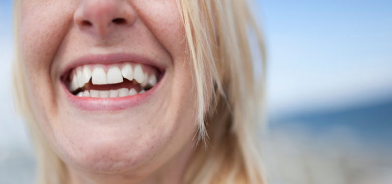 DIY: A Nontoxic Way To Whiten Your Teeth Hero Image