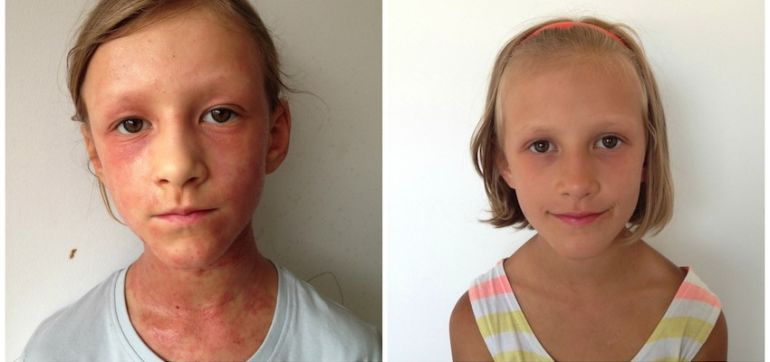 I Healed My Daughter's Eczema With A Raw Diet Hero Image