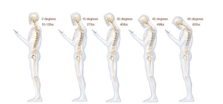How Texting Damages Your Posture Hero Image
