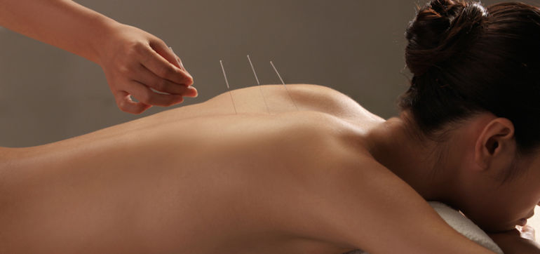 5 Reasons You Should Try Acupuncture Right Now Hero Image