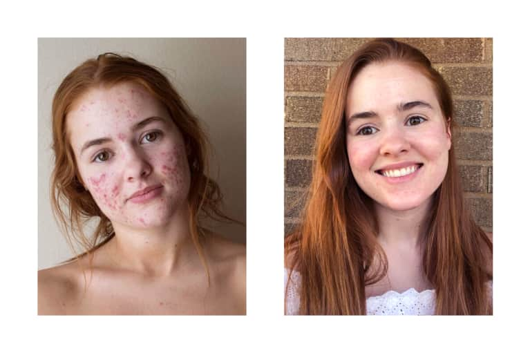 My Face Story: How I Went Off Accutane & Healed Cystic Acne With Nontoxic Skin Care