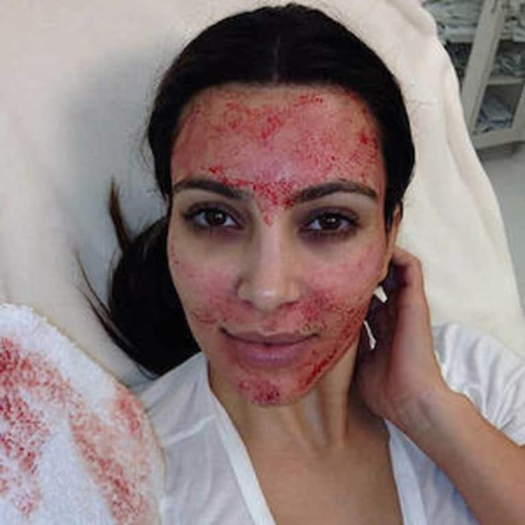 """10 Amazing """"Natural"""" Beauty Treatments You Won't Believe Exist"""