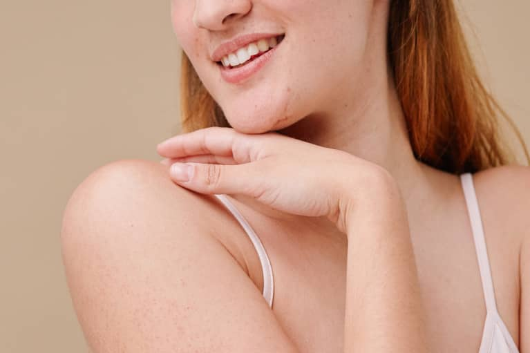 woman with chin acne and whiteheads in a white tank top