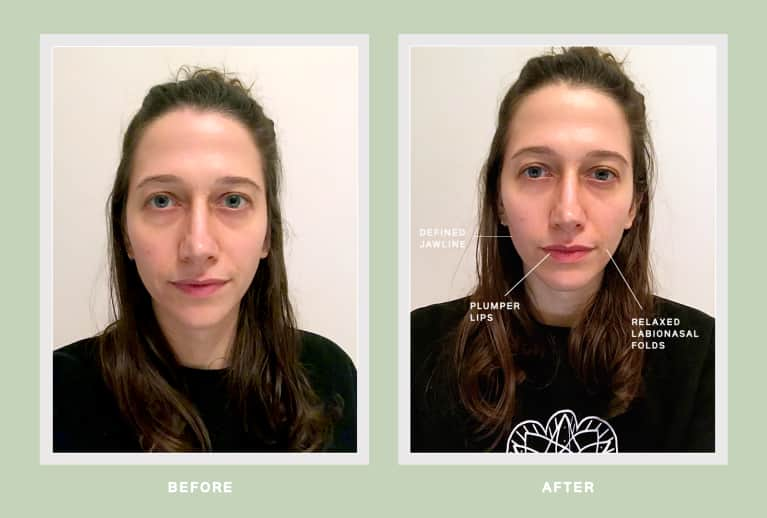 facial cupping before and after