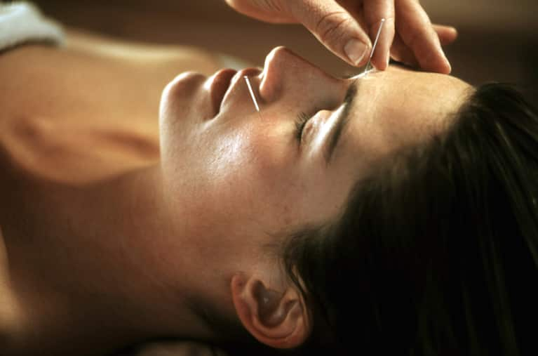 8 More Reasons To Try Acupuncture