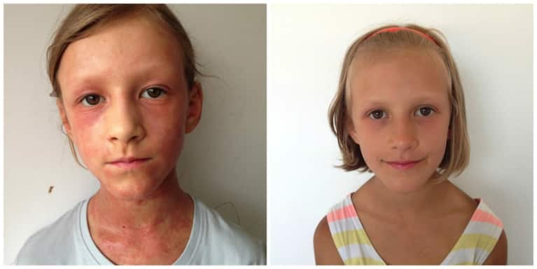 I Healed My Daughter's Eczema With A Raw Diet