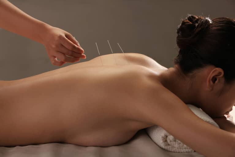 5 Reasons You Should Try Acupuncture Right Now