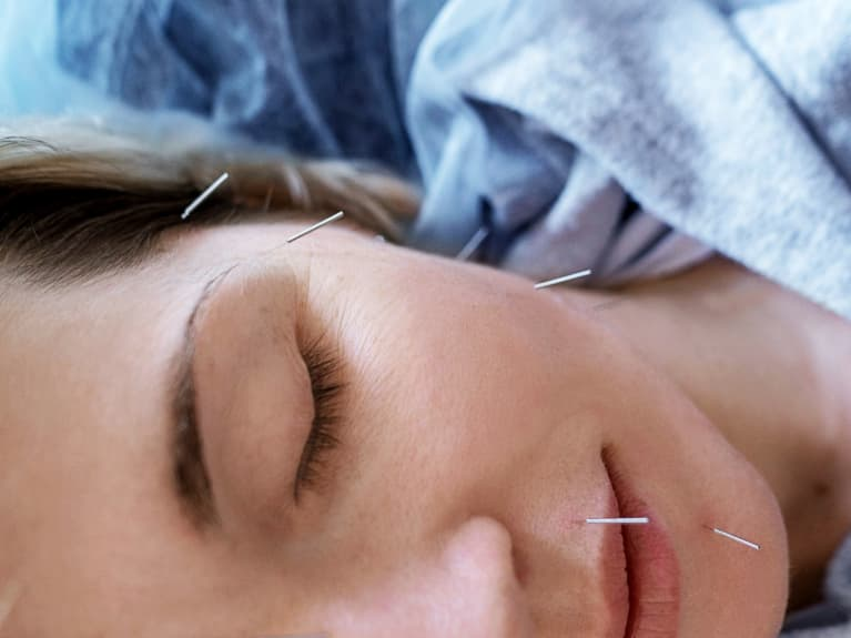 Having Problems With Menopause? You May Want To Try Acupuncture, Study Finds