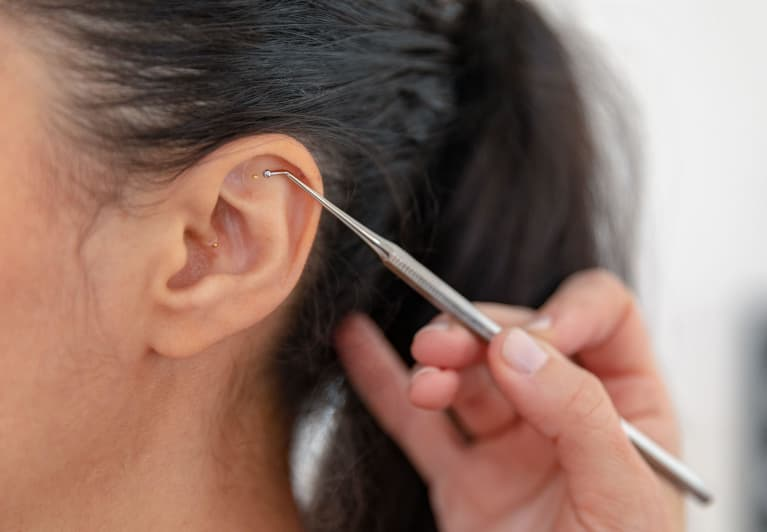 I Tried Ear Seeds For Anxiety — This Is What Happened
