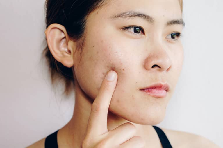 The Surprising Way To Apply Concealer On Acne Scars Without Appearing Caky