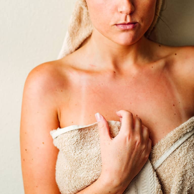 Young Woman With Sunburn