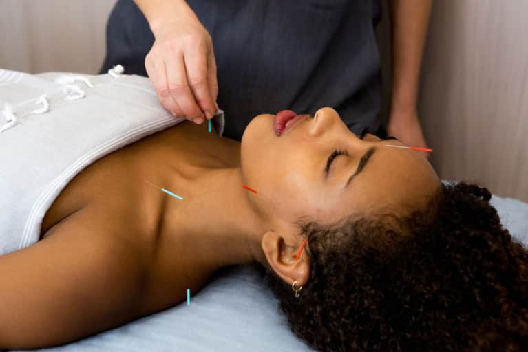 Is Acupuncture Officially Mainstream?