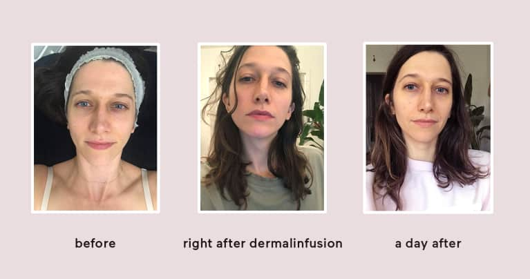 Dermalinfusion Facial Review— Here's What It's Really Like