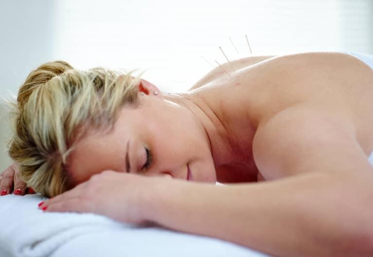 Can Acupuncture Help Strengthen Your Pelvic Floor?