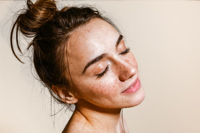 Do You Have Freckles, Melasma, Or Dark Spots? Tips For Identifying Each