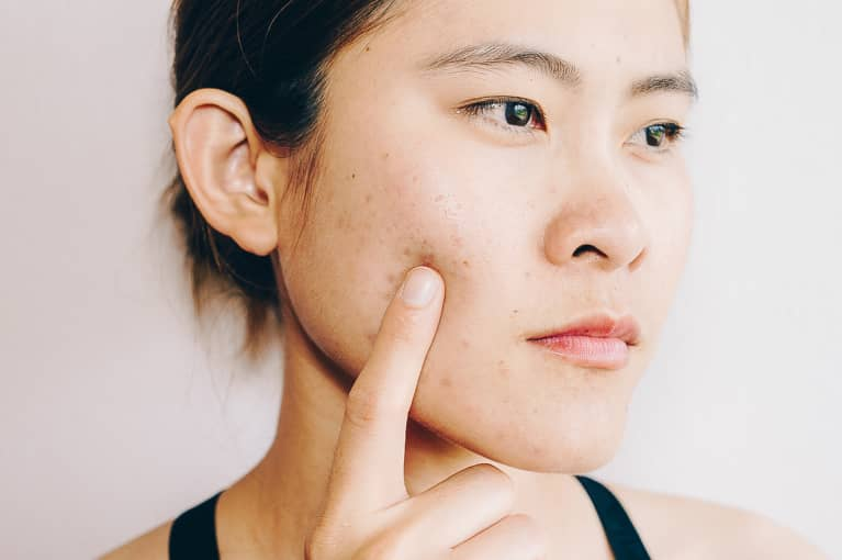 The Skin Microbiome May Play A Larger Role in Acne Than We Thought