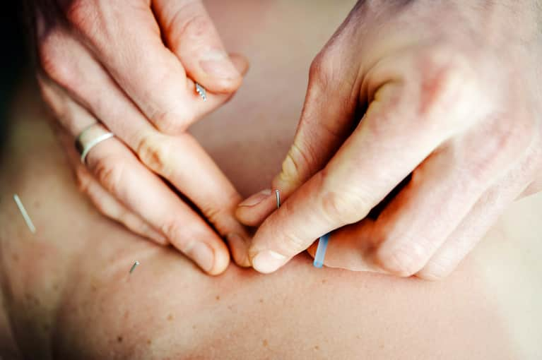 Calling All Acupuncture Skeptics: Here Are Some Great Reasons To Give It A Try