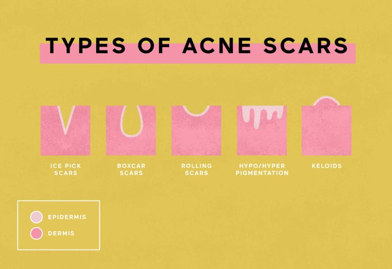 types of acne scars graphic