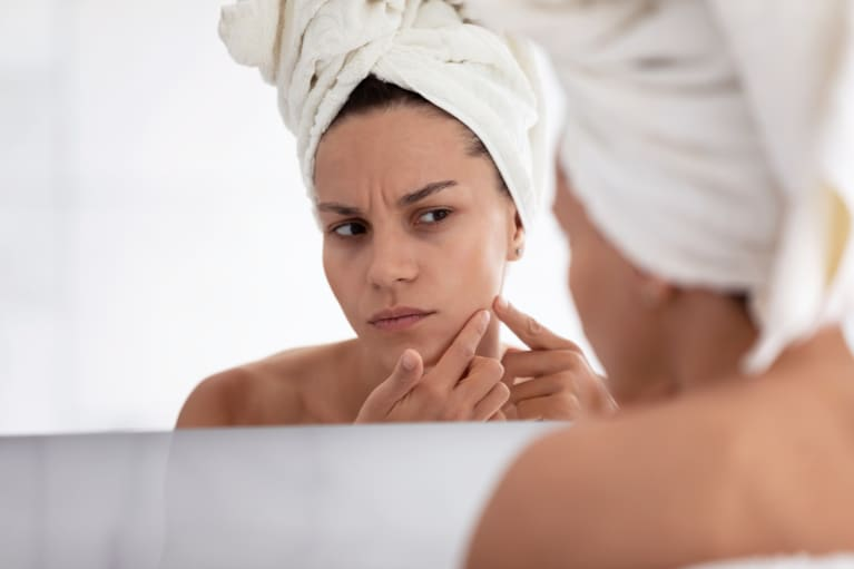 (Last Used: 3/2/21) How To Soothe Irritated Skin: Causes, Remedies & Derm's Expert Tips