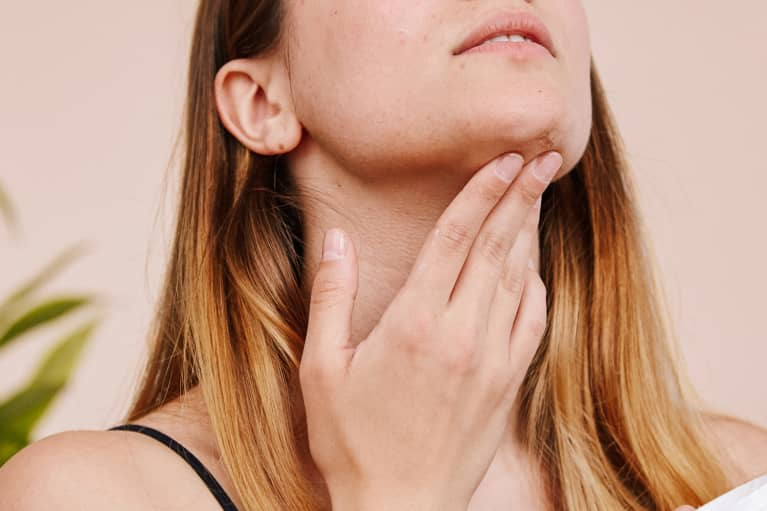 Acne Scars? Here's The 5 Types Explained + What To Do
